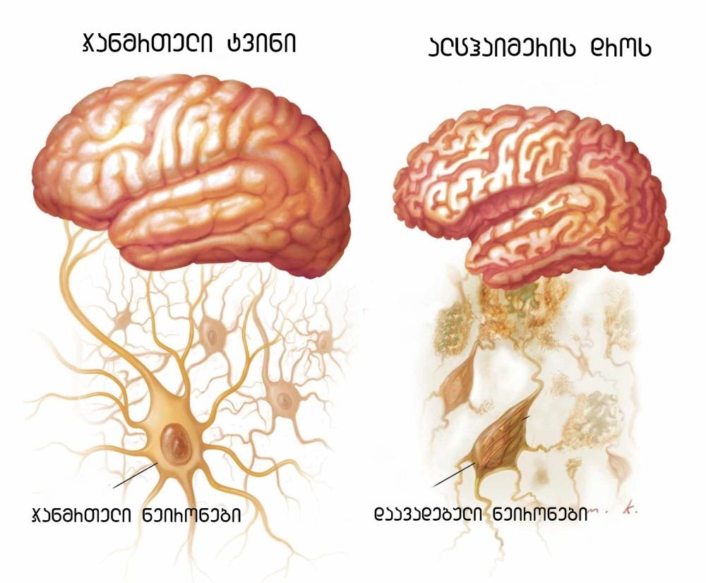 Alzheimers-001-1